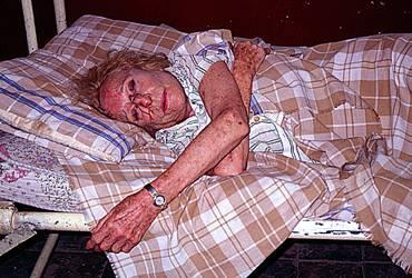 Лени Рифенщал в болница